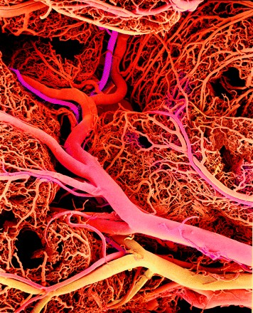 Cardiovasculair risicomanagement (CRM)