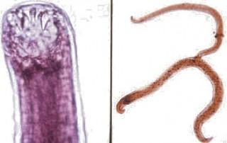 Mijnwormen